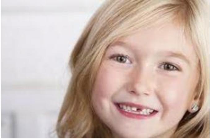 Perdita dei dentini da latte – Come rendere sereno e tranquillo questo momento? – Articolo elaborato da Dott. Daniele Parrello Prof a c. Università dell'Insubria – Varese Medico Chirurgo